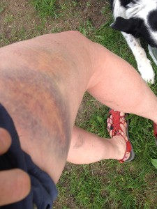 bruise from bike crash may 2014