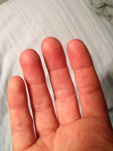 I test my blood sugar 8 to 12 times a day. Can you see the calluses on my fingertips?