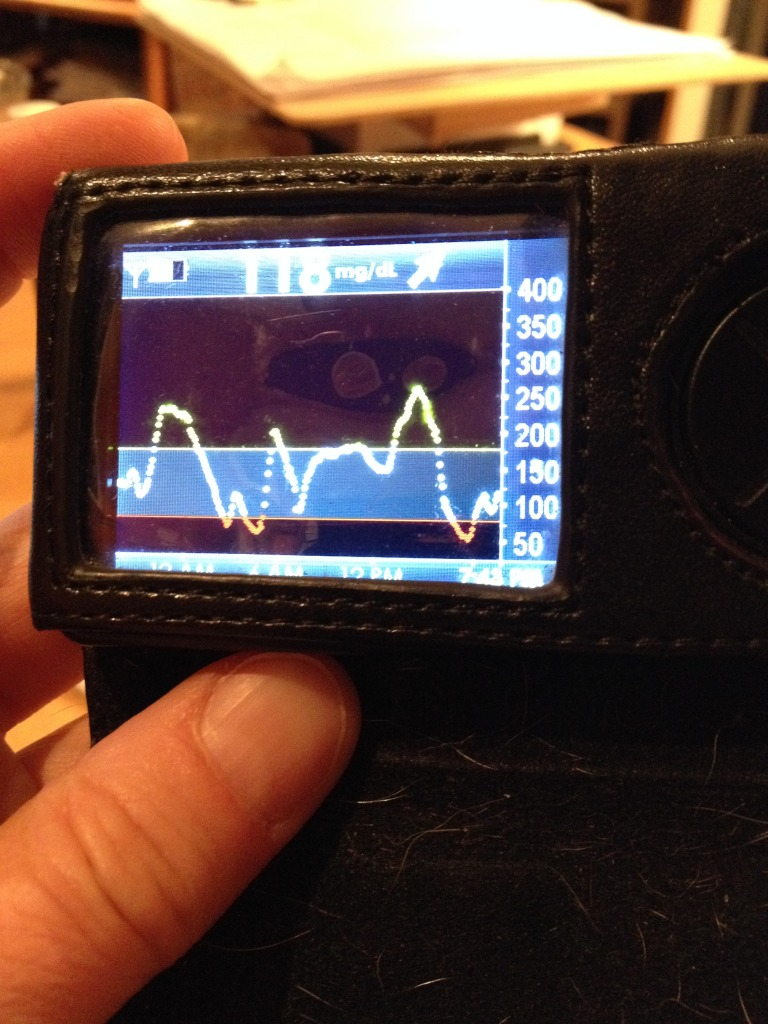 dexcom graph April 22 2015